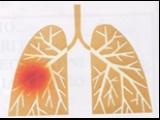 Broncopneumopatia cronica ostruttiva, non solo un male di stagione